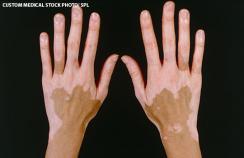 Symmetrical depigmented patches of vitiligo