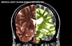 Scan showing Alzheimer's disease