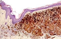 Skin cancer micrograph