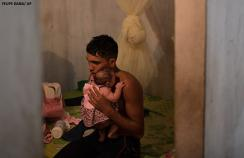 A father holding his daughter who has microcephaly