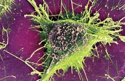 Alzheimer's disease cell
