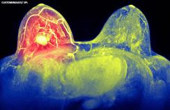 Breast cancer X ray