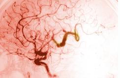 serpentine aneurysm