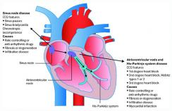 Position of sinus and atrioventricular nodes in the heart