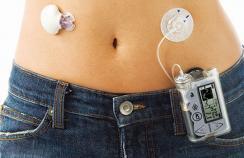 Controlling type 1 diabetes