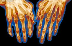 An x ray of a person with gout in the joints of their fingers