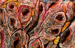 coeliac disease intestine