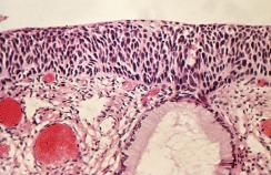 cervix with carcinoma