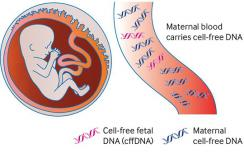 Cell-free fetal DNA for non-invasive prenatal testing