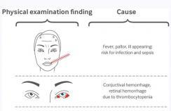 Clinical presentation of acute myeloid leukemia