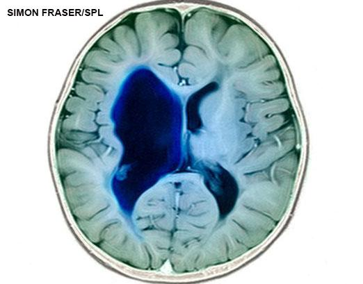 MRI scan showing cerebral palsy