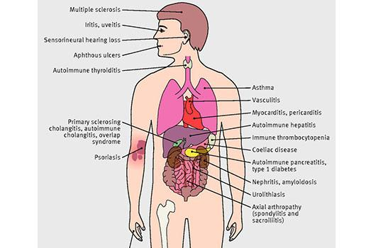 Extraintestinal manifestations and associated autoimmune disorders in patients with Crohn's disease