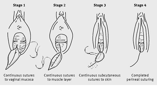 Repair of second degree perineal injury/episiotomy using continuous suturing method