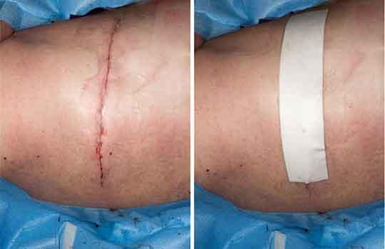 wound dressings