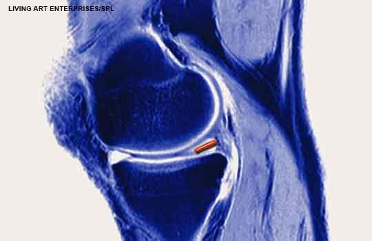 meniscal tear in knee MRI