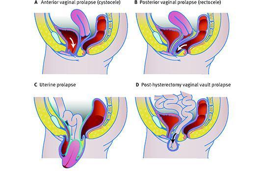 Types of pelvic organ prolapse