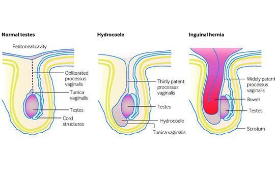 Paediatric inguinal hernia
