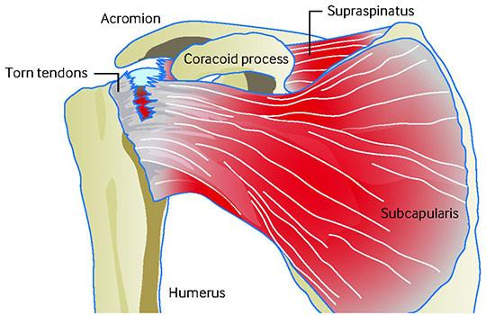 Diagram of a full thickness tear of the supraspinatus and subscapularis tendons