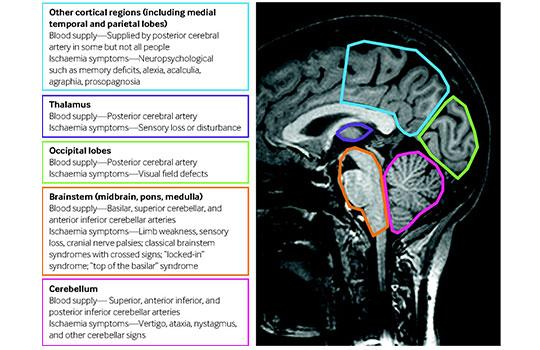 Brain regions supplied by the posterior circulation and regional symptoms of posterior circulation ischaemia