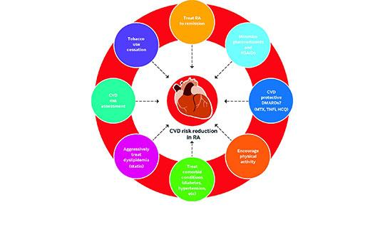 Targeting cardiovascular disease risk reduction in rheumatoid arthritis