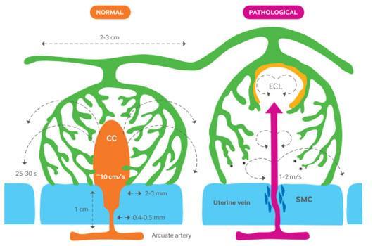 pre-eclampsia diagram
